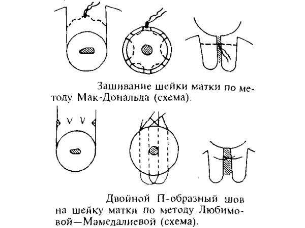 Методы зашивания ШМ